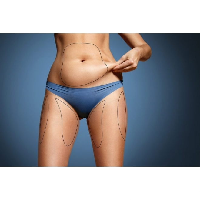 Improve the Efficiency and Safety of Liposuction with Data Analysis